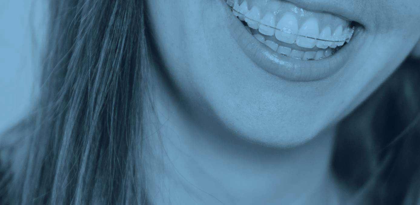 FAQ | Bozeman Orthodontics